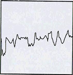 Độ nhám tiêu chuẩn hạt bi thép tròn S280 đối với máy phun bi