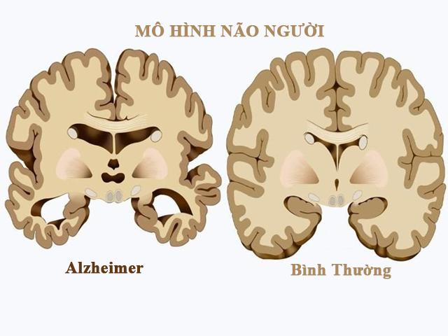 mo-hinh-nao-bi-benh-Alzheimer