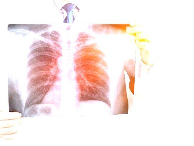Bụi silic gây hại cho cơ thể